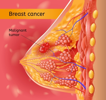 Breast Cancer Medical Vector Chart with Human Female Breast Anatomical Structure Cross Section View and Mammary Gland Tissue Affected Cancer Malignant Tumor Illustration. Common Type of Woman Oncology
