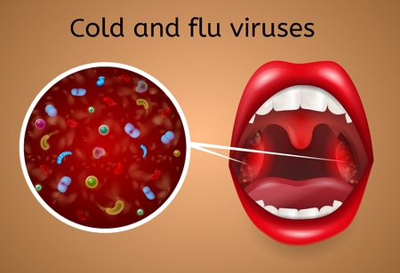 Cold and Flu Viruses Vector Concept with Bacteria, Microbes or Viruses under Microscope Magnifiсation on Infected, Enlarged and Inflamed Tonsils in Woman Throat Illustration. Respiratory Viral Disease