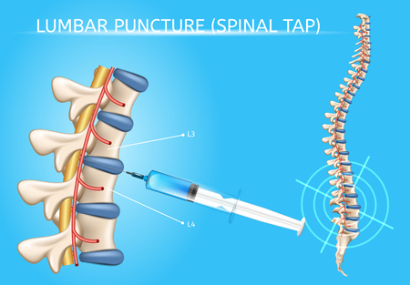 Lumbar Puncture or Spinal Tap Procedure Medical Vector Poster with Human Vertebral Column and Syringe Needle Inserted Into Spinal Canal to Collect Cerebrospinal Fluid Anatomical Realistic Illustration Vectores
