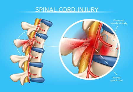 Spinal Cord Injury Vector Medical Scheme with Magnification of Fractured Vertebral Body and Damaged with Injury Spinal Cord Anatomical Realistic Illustration. Dangerous Back or Spine Trauma Concept Illustration
