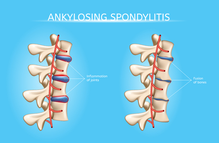 Ankylosing Spondylitis Realistic Vector Medical Chart with Human Vertebral Column Joints Inflammation and Bones Fusion Anatomical Illustration. Spine joint bones arthritis symptoms orthopedic concept Ilustração