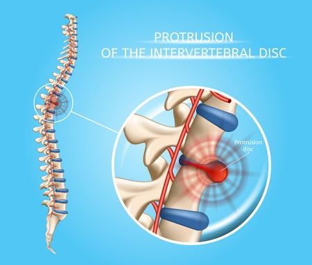 Protrusion of Intervertebral Disc Realistic Vector Medical Poster with Magnification of Damaged, Painful Spine Disc. Human Musculoskeletal System Problems with Disease Symptoms Explaining Illustration Ilustracja
