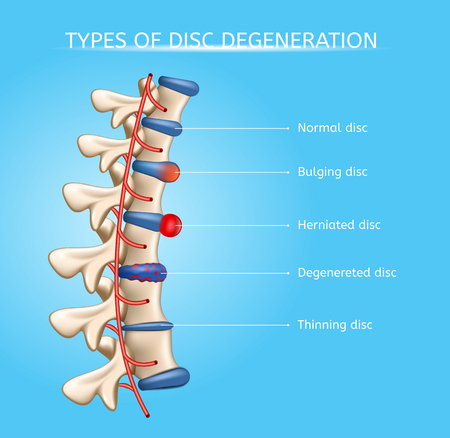 Types of Spinal Disc Degeneration Vector Medical Scheme with Normal, Bulging, Herniated, Degenerated and Thinning Discs on Human Vertebral Column Illustration. Spinal Disc Diseases Orthopedic Concept 向量圖像