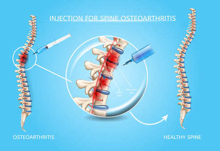 Spine Osteoarthritis Injection Realistic Vector Medical Scheme. Medications Administration with Syringe Needle to Damaged Spinal Column Area and Healthy Because of Medical Treatment Spine Illustration