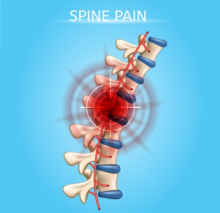 Human Spine Pain Realistic Vector Medical Scheme with Sight Cross on Pain Epicenter in Damaged Vertebra of Spinal Column Illustration. Human Musculoskeletal System Painful Diseases, Joint Injuries Illustration