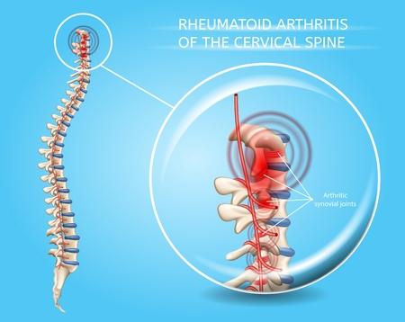 Arthrite rhumatoïde du schéma médical de vecteur de colonne vertébrale cervicale avec illustration réaliste des articulations synoviales de la colonne vertébrale enflammée et endommagée. Concept de maladies douloureuses du système musculo-squelettique humain