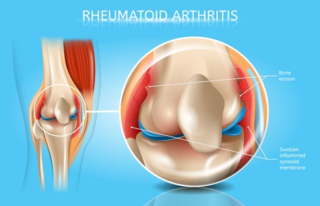 Rheumatoid Arthritis Realistic Vector Anatomical Chart With Magnified Inflamed And Swollen Synovial Membrane, Bone Erosion In Human Joint Illustration. Musculoskeletal System Disease Medical Poster