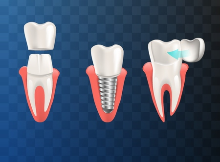 Realistic Illustration Set Teeth Different Problem. Vector Image 3d Visualization Orthodontic Restoration Diseased Tooth Different Ways Implant, Crown, Dental Veneer. Isolated on Empty Background Vettoriali