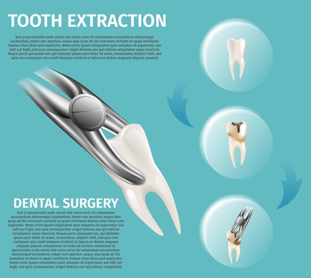 Realistic Illustration Infographic Dental Surgery. 3d Banner Vector Image Procedures for Tooth Extraction. Process Tooth Decay Caries, from Healthy Tooth Completely Spoiled. Green Background  イラスト・ベクター素材
