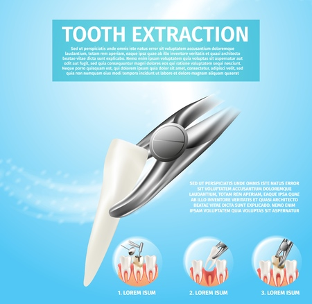Realistic Illustration Tooth Extraction Vector 3d. Banner Infographic Image Procedures Incisor Tooth Extraction. Dental Care Affected Tooth. Process Caries Treatment with Dental Drill. Medical Forceps