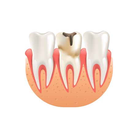 Realistic Illustration Enamel Caries in 3d Vector Dental Periodontitis. Tooth Infection Among Healthy Teeth Human Jaw. Necessary Treatment Diseased Tooth. Isolated on White Background Illustration