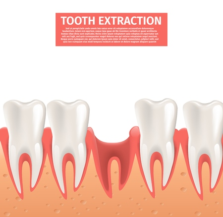 Realistic Illustration Tooth Extraction Vector 3d. Banner Image Gum with Empty Spot Sick Tooth Pulled Out in Number Healthy Teeth Human Jaw. Treatment Gingivitis. Isolated on White Background