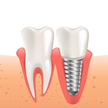 Implant dentaire Illustration réaliste en graphique 3d. Image vectorielle Dents Humaines. Dent déchirée de remplacement d'implant. Soins dentaires pour le patient avec son problème. Isolé sur fond blanc Vecteurs