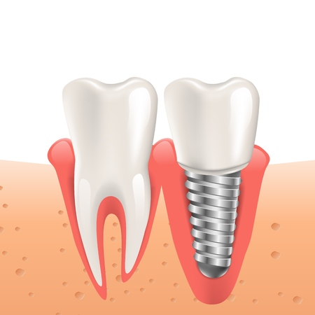 Realistische Illustration Zahnimplantat in 3D-Grafik. Vektorbild menschliche Zähne. Implantatersatz gerissener Zahn. Zahnpflege für Patienten mit seinem Problem. Isoliert auf weißem Hintergrund Vektorgrafik