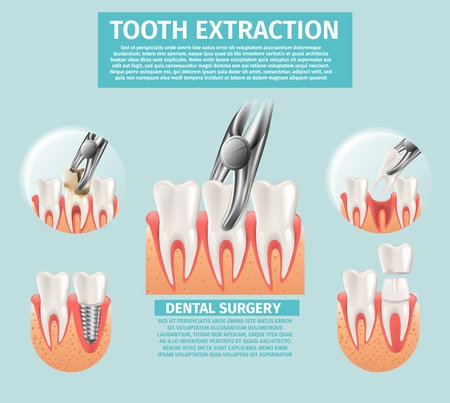 Realistic Illustration Tooth Extraction Vector 3d. Banner Set Image Dental Surgery Procedures Tooth Extraction, Midicine Orthodontic Dental Implant Installation Process. Restoration Lost Tooth