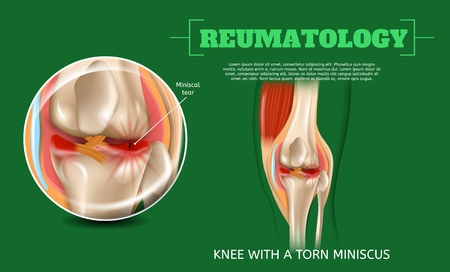 Realistic 3d Illustration Knee with Torn Miniscus. Vector Image Reumatology Anatomy Human Knee. Medical Visualization Knee Injury, Meniscus Tear. Sprain Painful Contusion Leg Joint. Operational Case Ilustração