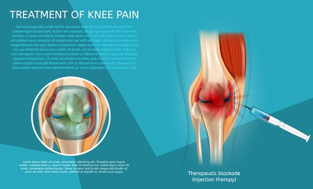 Realistic Illustration Treatment of Knee Pain. 3d Vector Image Banner Therapeutic Blockade Human Knee Joint. Syringe Injection. Medical Poster Procedure and Result Treatment with Injection Therapy.