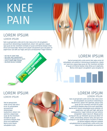 Banner Infographics Knee Pain Treatment Methods. 3d Vector Image Anatomy Joint Human Knee Before and After Treatment. Anti Arthritis Cream Natural Mint Extract. Injection Drug in Affected Area