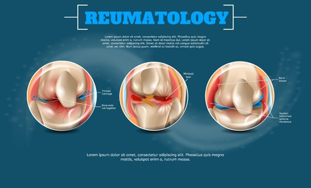 Realistic Banner Illustration Reumatology Vector. 3d Image Medical Poster with Visualization Anatomy Human Knee from Different Sides. Scientific Manual for Study Structure Knee Joint