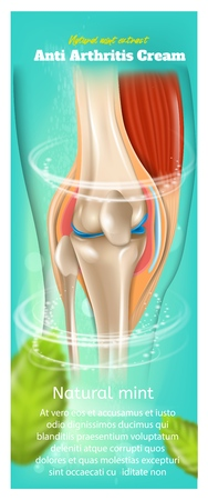 Banner Anti Arthritis Cream Natural Mint Extract. Realistic 3d Vector Illustration Closeup Anatomy Human Knee Joint After Applying Medical Cream Treatment. Pharmacy Brand Advertising Poster