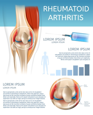 Infographic Treatment Method Rheumatoid Arthritis. 3d Banner Vector Illustration Anatomy Human Knee Joint with Diseases. Information Joint Treatment with Medicine Injection for Pain Relief Illustration