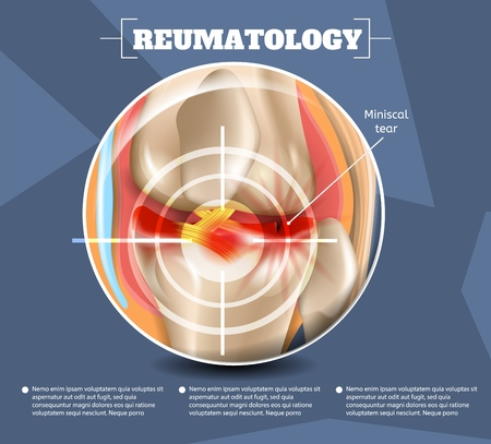 Realistic Illustration Reumatology Medicine in 3d. Vector Image Banner Anatomy Medical Structure Types Injuries and Diseases Miniscal Tear Human Knee Joint. Poster Infographics Study Foot Joint Injury
