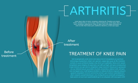 Realistic Illustration Treatment of Knee Pain. Medical Benefit Demonstrating Structure Knee Before and After Arthritis Treatment Detailed Structure Leg Joint. 3d Vector Image Banner Anatomy Human Knee Illustration