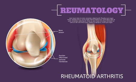 Realistic Illustration Knee Rheumatoid Arthritis. 3d Vector Image Reumatology Anatomy Human Knee. Medical Visualization Long Standing Knee Injury. Poster Study Structure, Surgical Problems Leg Joint