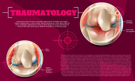 Realistic Illustration Traumatology Medicine in 3d. Vector Banner Image Anatomy Human Knee Joint, Effects and Treatment Injury. Swollen Inflammed Synovial Membrane, Bone Eroson, Bone ends Rub Together