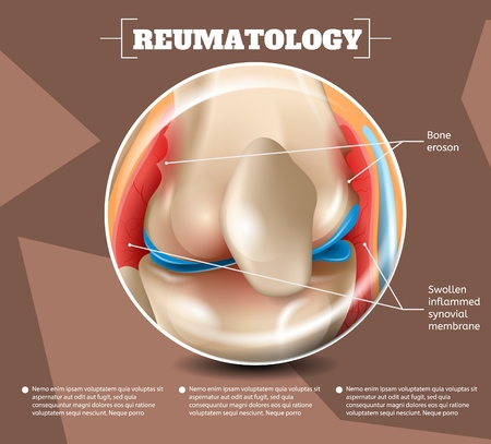Realistic Illustration Reumatology Medicine in 3d. Vector Image Banner Anatomy Medical Structure Types Injuries and Diseases Bone Eroson, Swollen Inflammed Synovial Membrane Human Knee Joint
