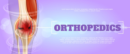 Realistic Illustration Orthopedics Medicine in 3d. Banner Vector Image Closeup Anatomy and Structure Human Knee Joint. Infographics Study Method Treatment and Elimination Foot Joint Disease