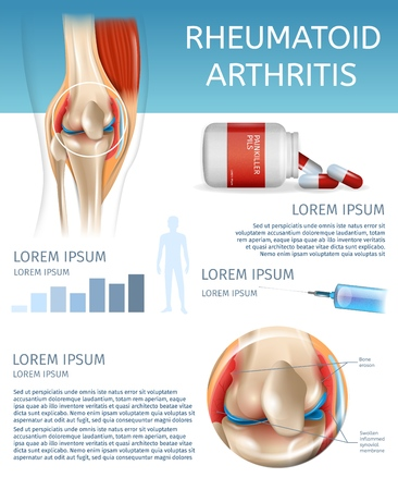 Infographic Treatment Method Rheumatoid Arthritis. 3d Banner Vector Illustration Human Knee Joint Diseases. Information Joint Treatment Medicine Injection for Pain Relief. Packaging Painkiller Pils