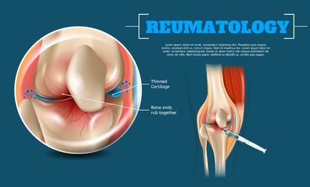 Beneficios de la imagen realista Lugar de inyección correcto. 3d Banner Reumatología Anatomía Rodilla humana. Vista de cerca de la articulación de la rodilla y el sitio de inyección con líquido de jeringa para suavizar el cartílago de la rótula de fricción