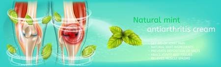 Vector 3d Banner Natural Mint Antiarthritis Cream. Realistic Illustration Anatomy Human Knee. Medical Advertising Poster Before and After Using Joint Pain Treatment Cream. Refreshing Mint Leaves