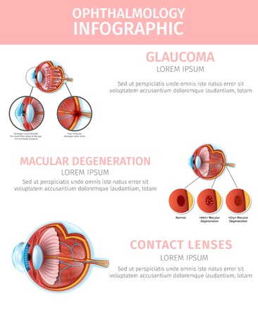 Medical Ophthalmology Infographic. Glaucoma and Macular Degeneration Correction with Contact Lenses. Visual Aid Banner with Copy Space. Human Eye Section View Anatomy. Vector Realistic Illustration Standard-Bild - 125183586