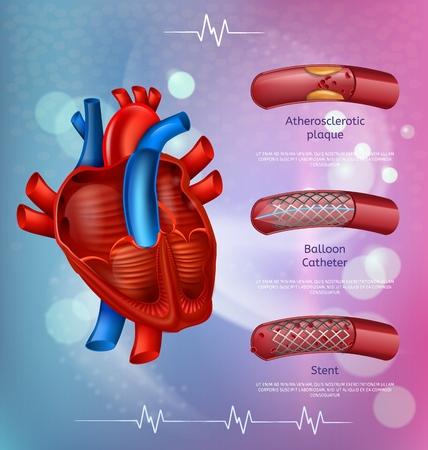 Patient de traitement médical de technologies modernes avec l'illustration vectorielle de plaques d'athérosclérose. Cathéter à ballonnet médical et traitement par stent. Affiche réaliste de présentation de clinique de maladie cardiaque Vecteurs