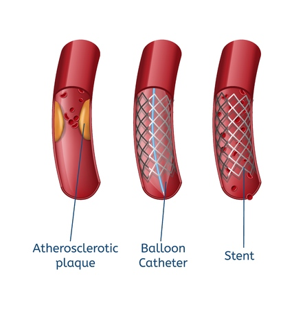 Elimination Atherosclerosis Realistic Presentation Template Close up Vessel Anatomy and Modern Method Balloon Catheter and Stent Treatment. Vector Illustration Medical Technologies. Healthcare Concept