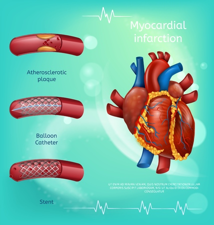 Atherosclerosis Medical Banner. Myocardial Infarction, Blood Vessels, Atherosclerotic Plaques Balloon Catheter, Stent Vector Illustration. Heart Disease Prevention Concept. Landing Page for Clinic Illustration