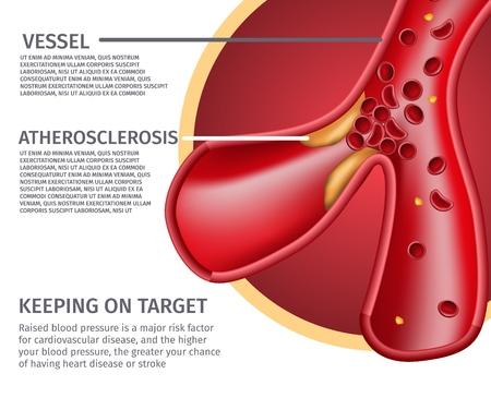 Ilustración de Vector de anatomía de vasos ateroscleróticos realistas de sección transversal. Banner de riesgos médicos del corazón. Póster que especifica el gran efecto del aumento de la presión arterial en los ataques cardíacos y los accidentes cerebrovasculares