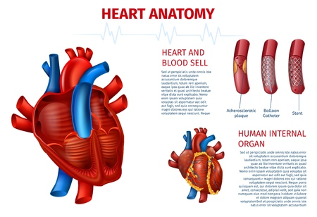 Medical Vector Illustration of Realistic Human Heart Outside and Cutaway Anatomy, Blood Vessels and Cell. Modern Method of Cardiovascular Problem Elimination with Balloon Catheter, Stent Treatment.