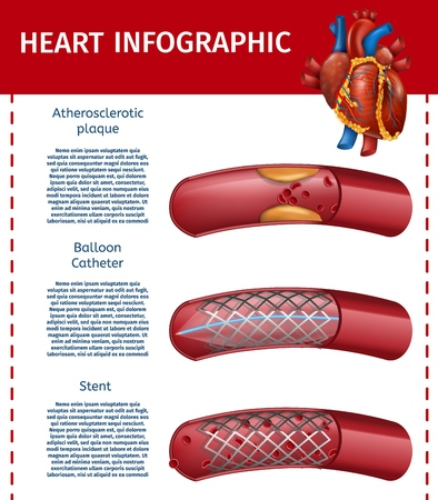 Realistic Vector Illustration Heart and Atherosclerotic Vessel. Modern Method of Surgery Therapy Banner. Information about Stent, Balloon Catheter Technologies. Landing Page for Cardiology Clinic Illustration