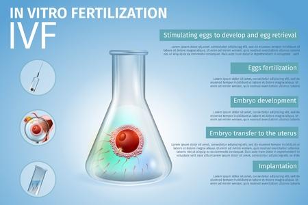 Composición del proceso de las etapas de fertilización in vitro. Unión de óvulos y espermatozoides humanos en el interior del vaso de precipitados. Espermatozoides en tubo de ensayo. Tecnología del sistema reproductivo. FIV. Vector ilustración realista. Bandera Ilustración de vector