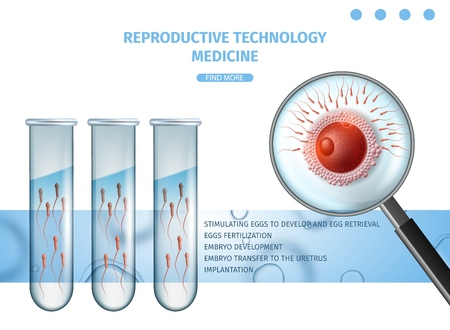 Reproductive Technology Medicine. In Vitro Fertilization Banner. Sperm Cells Swim to Egg Trough Magnifier Glass View. Test Tubes with Active Spermatozoons. Vector Realistic Illustration, Copy Space. Banque d'images - 120384052