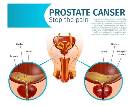 Prostatakrebs. Krebstumorzellen in der Prostata. Männliche urologische Erkrankungen des Fortpflanzungssystems, gesundes und entzündetes Organ. Realistische Vektor-anatomisches Schema-Banner, Textfreiraum, Stoppen Sie den Schmerz