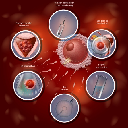 Infografica sulla fecondazione in vitro. Processo di fertilizzazione combinando manualmente l'uovo e lo sperma in un piatto da laboratorio, quindi l'embrione si trasferisce nell'utero. Illustrazione realistica di vettore. Banner medico IVF.