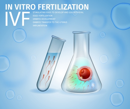 In Vitro Fertilization. Union of Human Egg and Sperm Inside of Beaker. Spermatozoons in Test Tube. Medical Tools for Reproductive Technology. IVF. Vector Realistic Illustration, Banner, Copy Space.