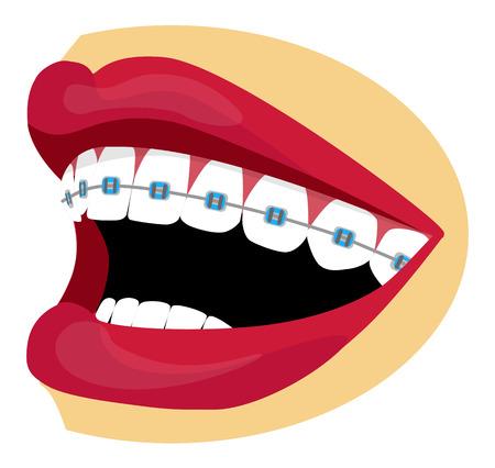 Vector brillante boca y los dientes con los apoyos Foto de archivo - 23073341