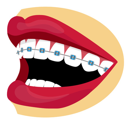 Vector glossy mouth and teeth with braces Vector