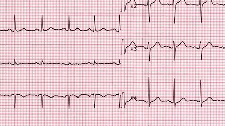 nhs: Electrocardiography (aka EKG Elektrokardiogramm) to measure heartbeat