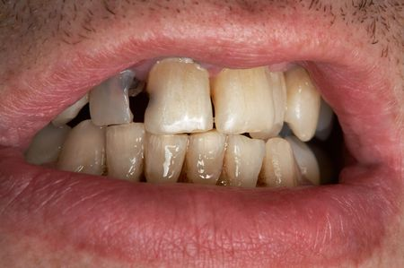 rotten teeth: Mouth of the man with a sick tooth Stock Photo